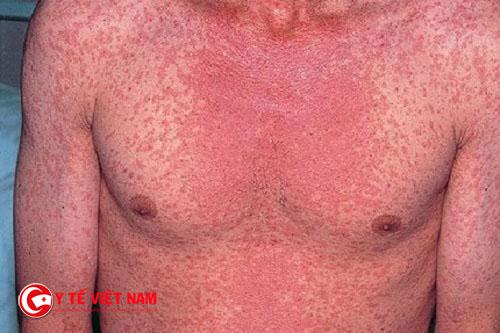 Đỏ da toàn thân là một trong những biểu hiện của dị ứng thuốc