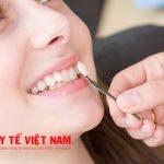 Giá tiền bọc răng sứ thẩm mỹ rẻ nhất hiện nay?