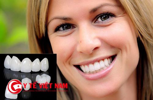 Nên bọc răng sứ loại nào?