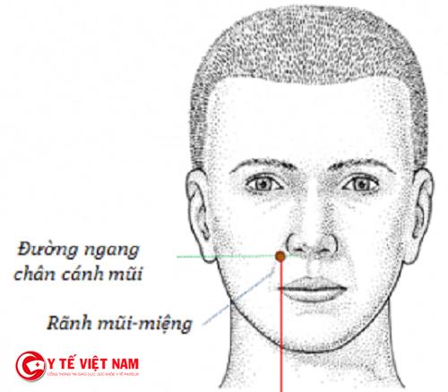 Phương pháp bấm huyệt nghinh hương điều trị bệnh viêm mũi dị ứng