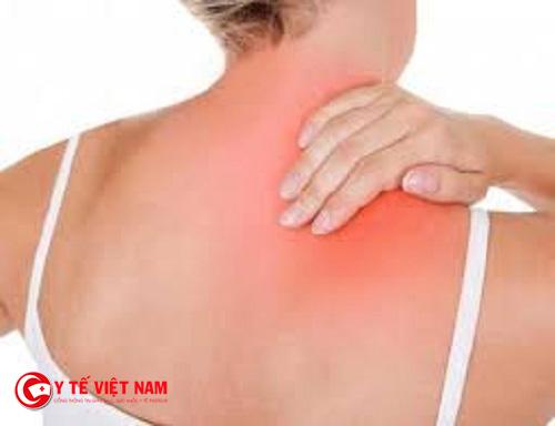 Bấm huyệt Thiên tông trong trường hợp đau nhức lan xuống cánh tay