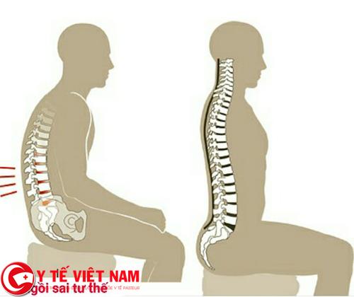 Mẹo điều trị bệnh gai cột sống là ngồi thẳng lưng