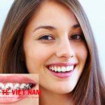 Niềng răng là giải pháp tối ưu nhất trong khi thẩm mỹ răng cửa thưa