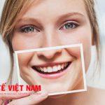 Bọc răng sứ thẩm mỹ theo quy trình khoa học