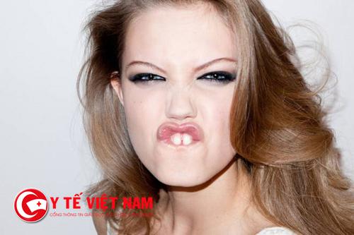 Thẩm mỹ răng cửa thưa nhanh chóng, an toàn nhất 2017
