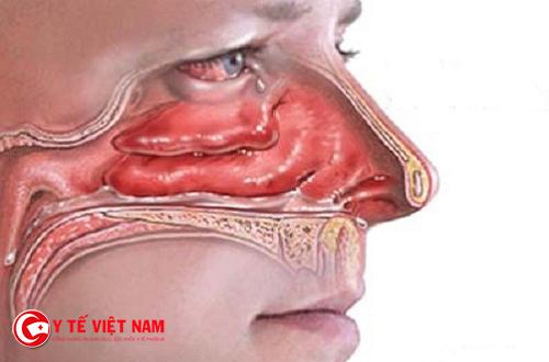 Áp dụng vật lý trị liệu trong việc điều trị bệnh viêm mũi dị ứng