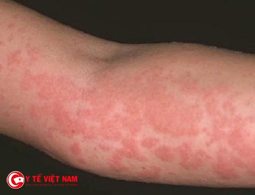 Bệnh viêm da dị ứng là một bệnh bị tổn thương ngoài da