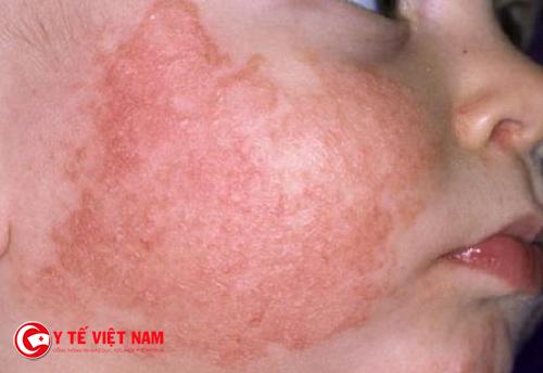 Sử dụng những gạc ướt để làm giảm nguy hiểm vùng da bị tổn thương
