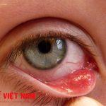 Viêm kết mạc mắt là biểu hiện của bệnh sốt siêu vi