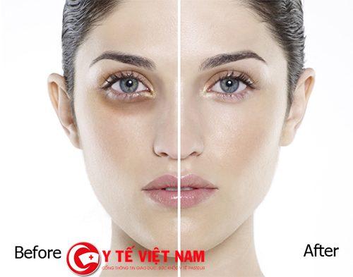 Thực hiện Laser để điều trị thâm quầng mắt hiệu quả