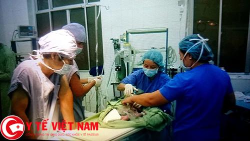 bé sơ sinh có khối gian nằm ngoài bụng được phẫu thuật
