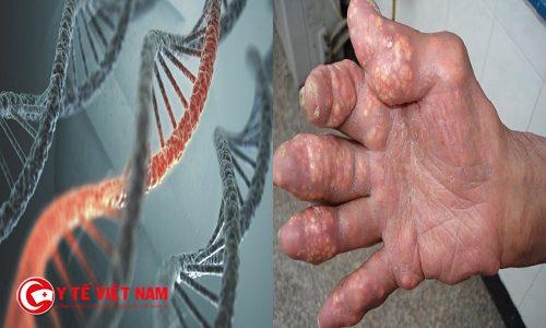 Bệnh gút có di truyền không?