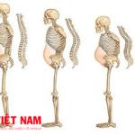 Bệnh loãng xương