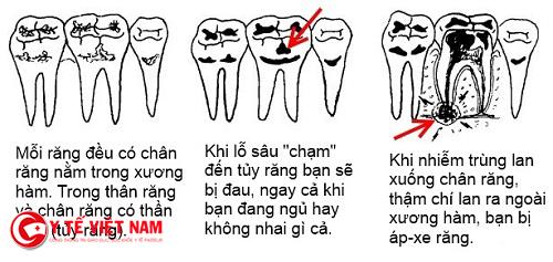 Bệnh sâu răng nếu không điều trị kịp thời sẽ gây nhiều nguy hiểm