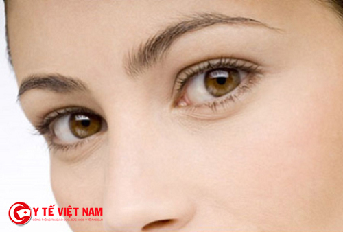 Mí mắt dưới xuất hiện bọng mỡ gây nên mất thẩm mỹ cho khuôn mặt
