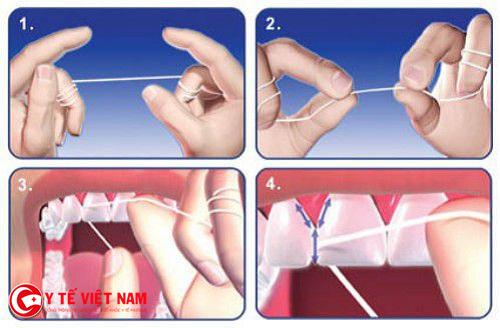 Các bước sử dụng chỉ nha khoa đúng cách giúp bảo vệ hàm răng của bạn