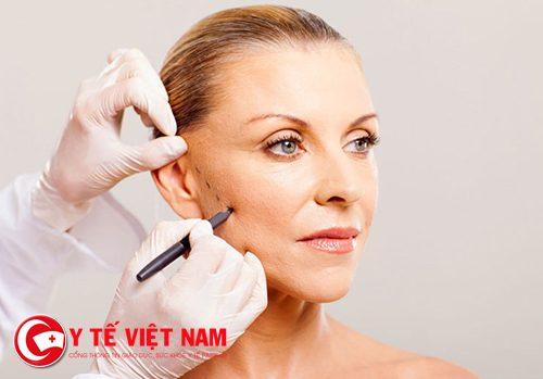 Căng da mặt nội soi phương pháp an toàn mà hiệu quả