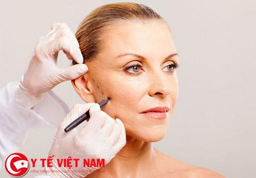 Căng da mặt nội soi tái tạo làn da trẻ trung, căng mịn cho phụ nữ