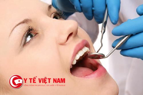 Có nên lấy cao răng hay không?