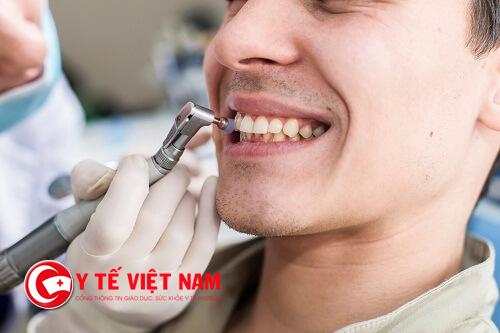 Có nên lấy cao răng để làm sạch mảng bám và hơi thở thom tho không?