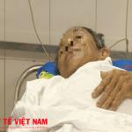 Cứu sống cụ ông 72 tuổi nguy kịch do hóc xương gà nguy hiểm