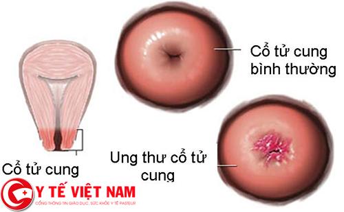 Dấu hiệu bệnh ung thư cổ tử cung