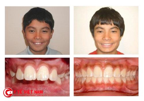Răng hô được phục hồi sau khi kết thúc quá trình niềng răng