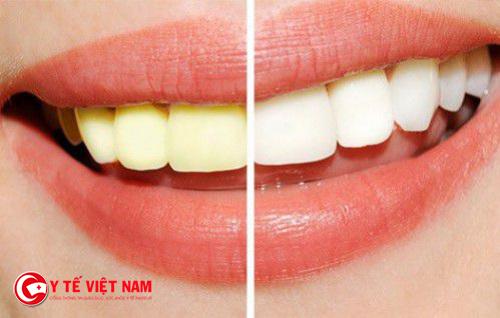 Khắc phục tình trạng răng ố vàng từ những nguyên liệu đơn giản