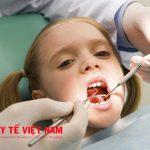 Những việc không nên làm sau khi lấy cao răng?