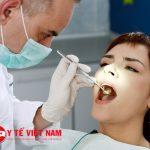 Tẩy trắng răng để hàm răng trắng sáng