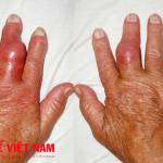 Những sai lầm thường gặp trong điều trị bệnh gút