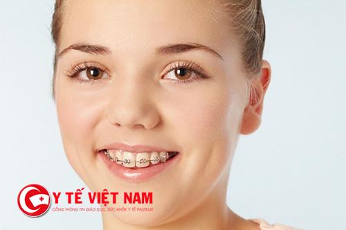 Niềng răng không giới hạn độ tuổi đối với mọi người