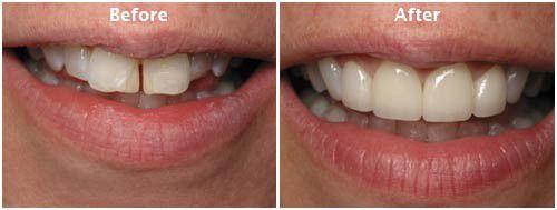 Niềng răng cửa giúp bạn lấy lại vẻ đẹp hàm răng