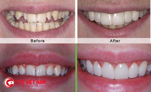 Hai răng trước vâu nặng được niềng đẹp trở lại. Lưu ý hiệu quả khác nhau đối với từng trường hợp cụ thể.