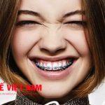 Các phương pháp niềng răng thẩm mỹCác phương pháp niềng răng thẩm mỹ