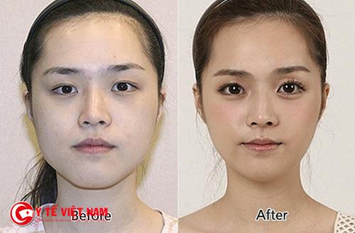 Phẫu thuật cắt mỡ mí mắt khắc phục hoàn toàn tình trạng mí trên sụp
