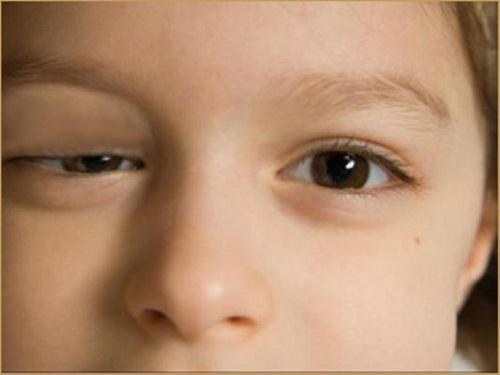 Phương pháp lấy mỡ mí mắt an toàn và hiệu quả