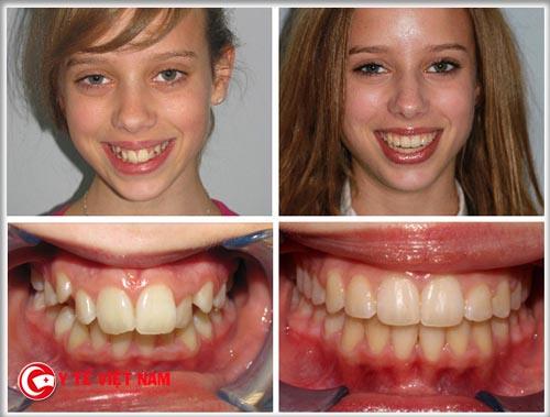 Răng khấp khểnh toàn hàm sau khi đeo niềng đã đều tăm tắp. Lưu ý hiệu quả khác nhau đối với từng trường hợp cụ thể.