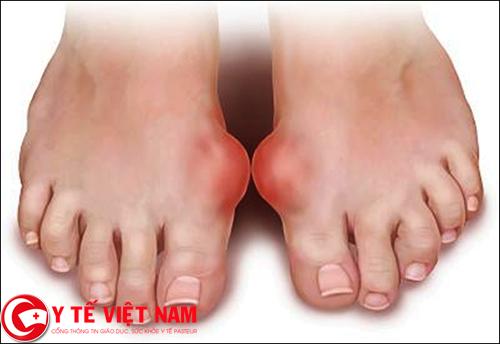 Sưng, tấy, đỏ khớp chân tiệu chứng cảnh báo bệnh gút