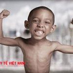 Trẻ suy dinh dưỡng thường còi xương và chậm phát triển nên cần có chế độ dinh dưỡng tốt