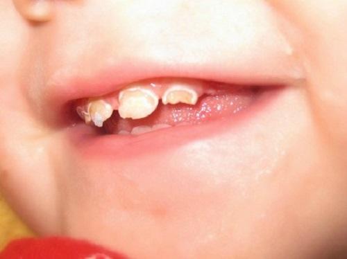 Bệnh sâu răng có nhiều nguyên nhân gây nên và triệu chứng rõ rệt