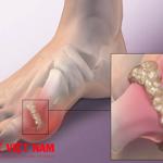 Triệu chứng cảnh báo bệnh gút