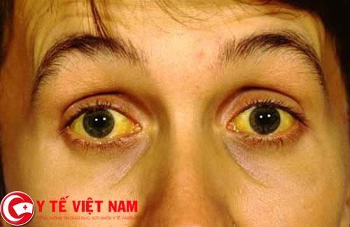 Vàng da dấu hiệu cảnh báo bệnh gan nhiễm mỡ