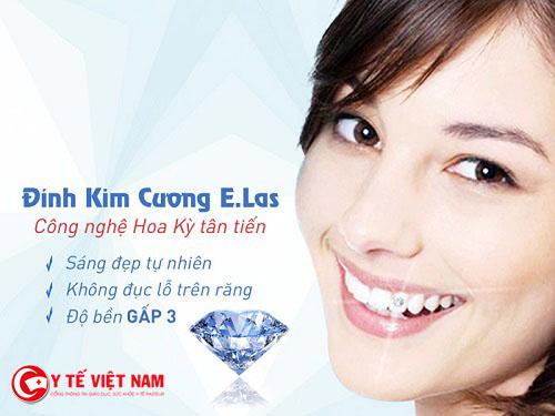 Công nghệ răng đính kim cương  E.Las khắc phục được những nhược điểm so với những công nghệ cũ