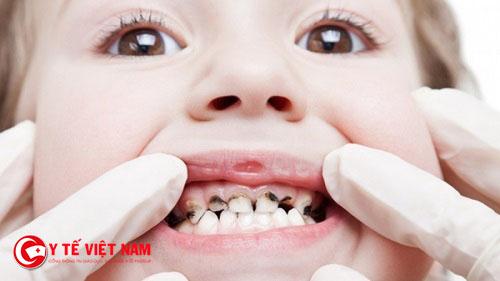 Không nên chủ quan đối với bệnh sâu răng ở trẻ nhỏ