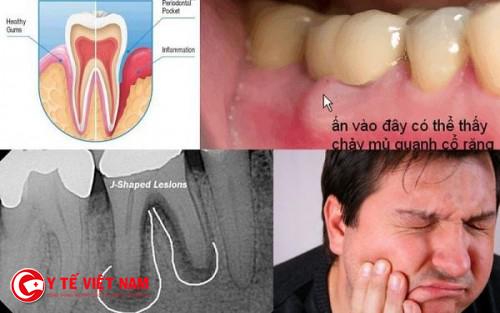 Bệnh sưng chân răng gây nguy hiểm đến sức khỏe cho người bệnh