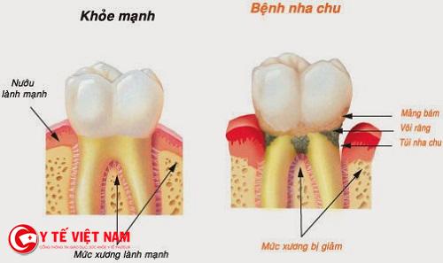 Cao răng gây nên nhiều bệnh nguy hiểm về răng miệng