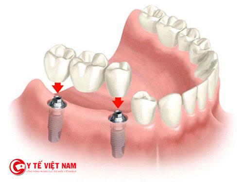 Công nghệ cấy ghép răng Implant giúp mang lại vẻ đẹp cho hàm răng của bạn