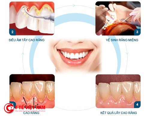 Lấy cao răng thường xuyên có gây ảnh hưởng gì đến răng miệng không?