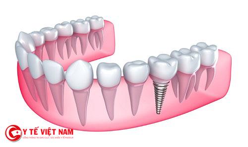 Công nghệ cấy ghép răng Implant được coi là phương pháp hiện đại nhất